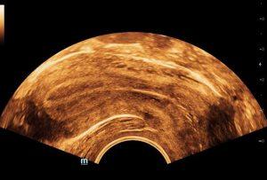 Uterus Endometrium