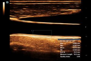 Common Carotid Artery IMT