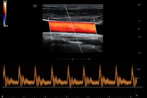 Common Carotid Artery PW