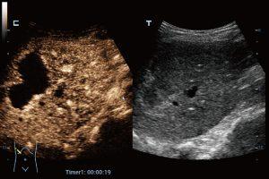 CEUS of Liver Hemagioma