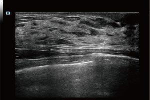 Hyperplasia Of Mammary Glands