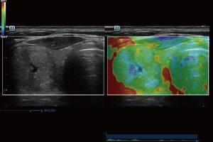 Elastography of Thyroid Mass